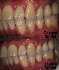 Periodontal theraphy
